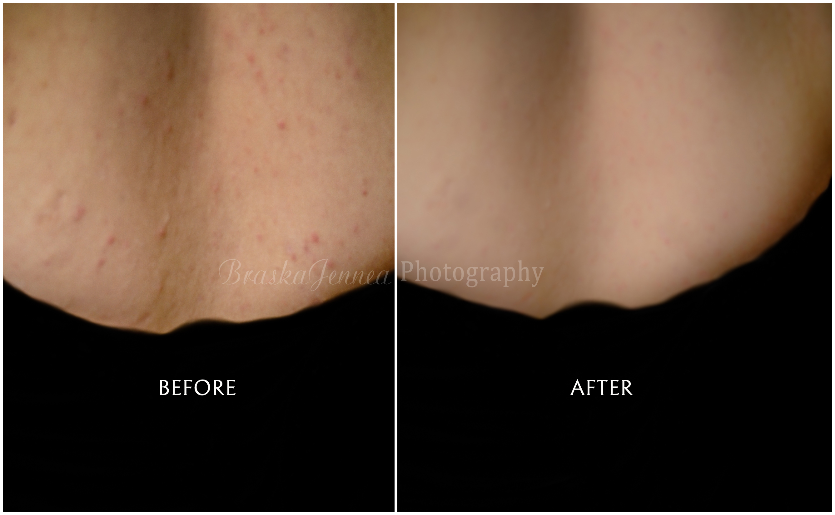Edit skin before n after wm braskajennea photography for How to get my photographs published